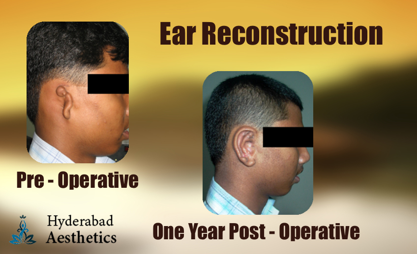 ear-reconstruction